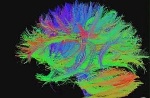 Como manter o seu cérebro jovem