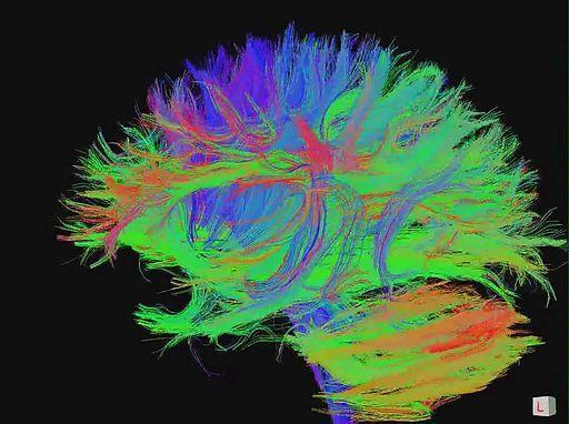Dez maneiras de manter o seu cérebro jovem