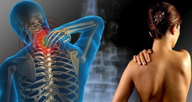 dores-da-fibromialgia