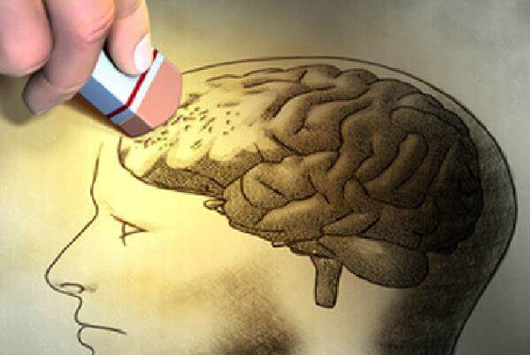 cerebro-demencia