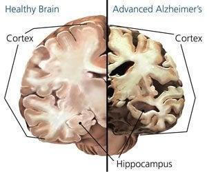 cerebro-mal-de-alzheimer