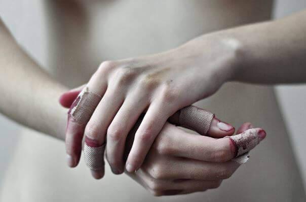 maos-feridas