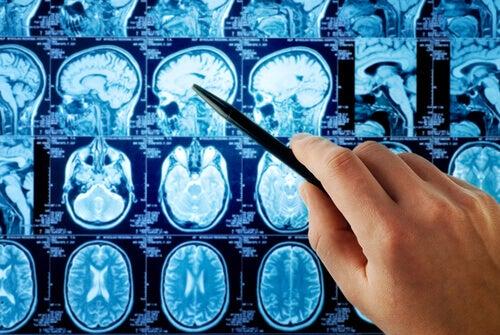 cerebro-lobulo-frontal