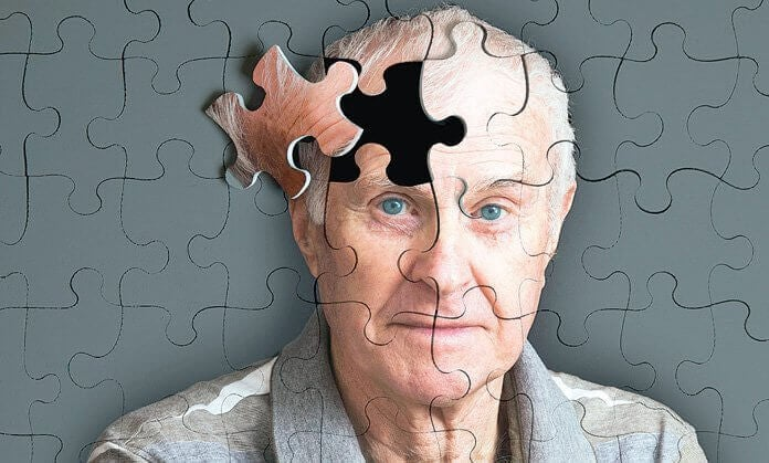 5 sinais que precedem o Alzheimer