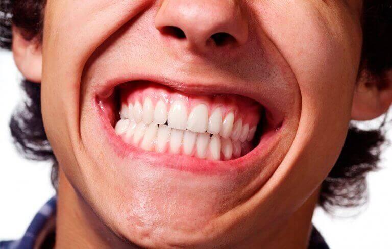 Homem com bruxismo rangendo os dentes