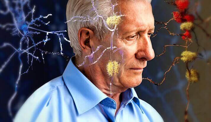 Homem com problemas neurológicos