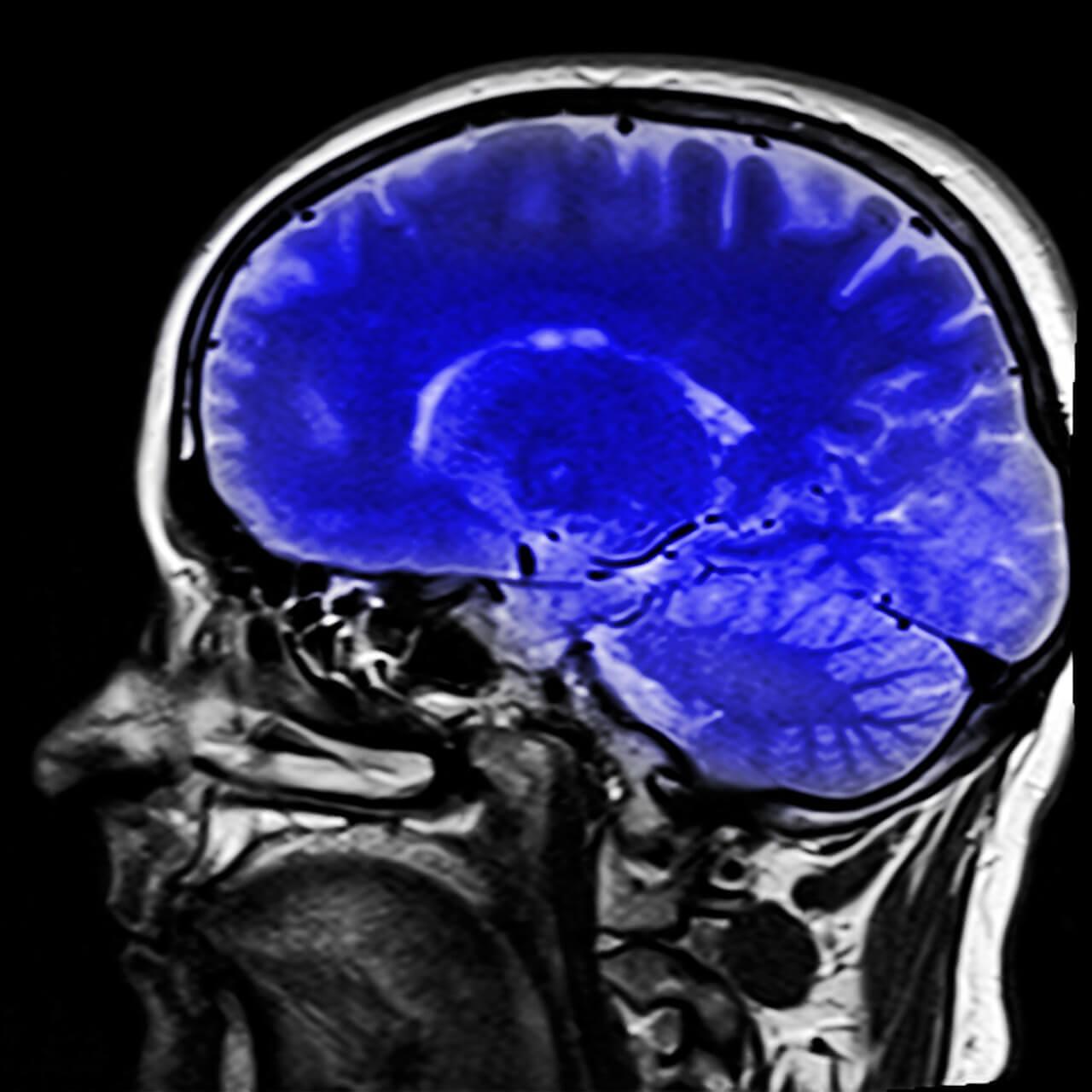 Cérebro humano pintado de azul