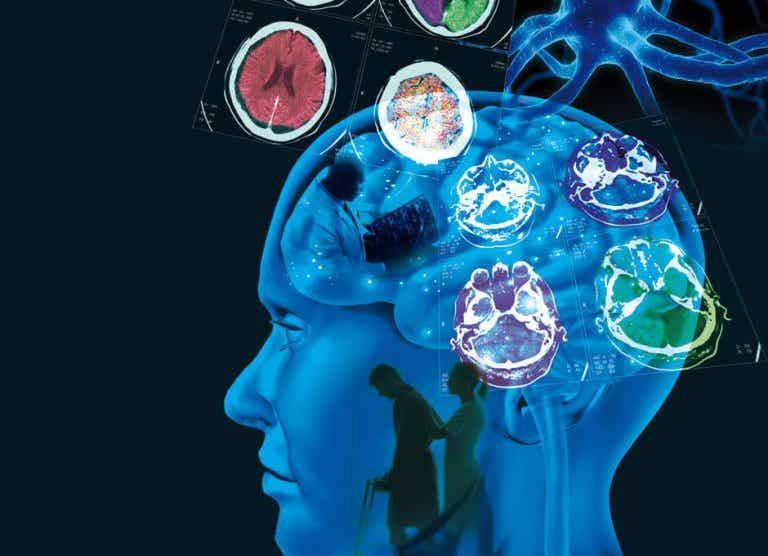 Esclerose múltipla: causas, sintomas e tratamento