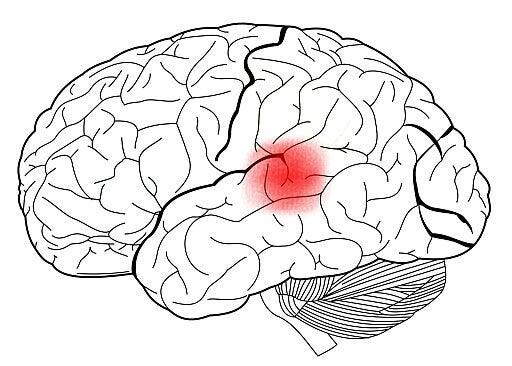 A área de Wernicke no cérebro