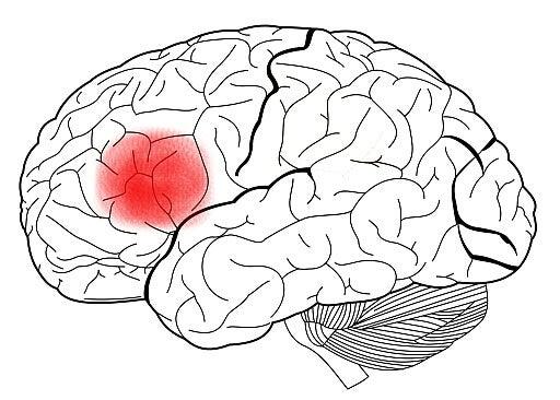 Área de Broca no cérebro