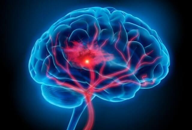 Neuroinflamação