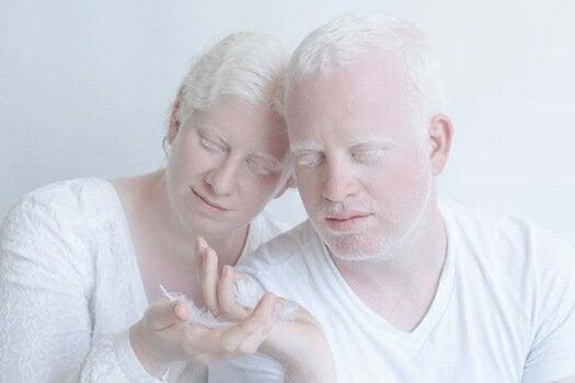 Mulher e homem albinos