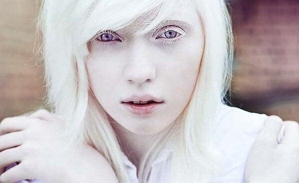 Pessoas albinas: além da aparência física