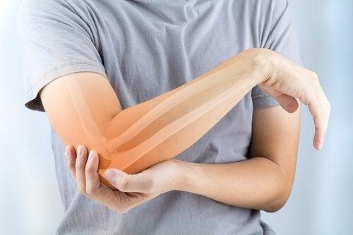Artrite reumatoide: sintomas, causas e tratamento