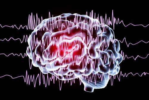 Cérebro em crise epiléptica