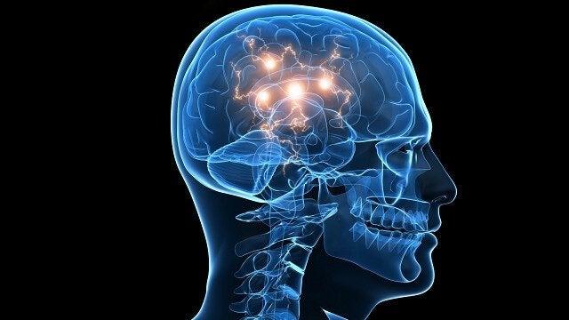 Dor de cabeça no cérebro