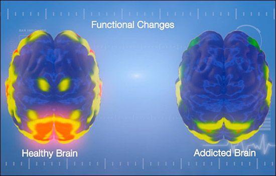 Cérebro saudável e cérebro viciado