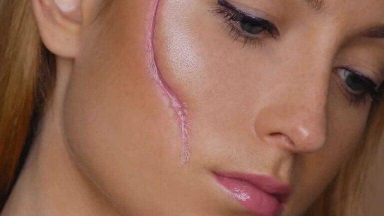 Mulher com cicatriz no rosto