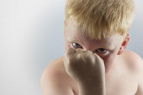 Agressividade nas crianças