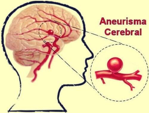 Aneurisma cerebral: definição, sintomas e tratamentos