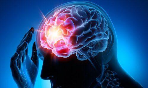 Como prevenir o aneurisma cerebral