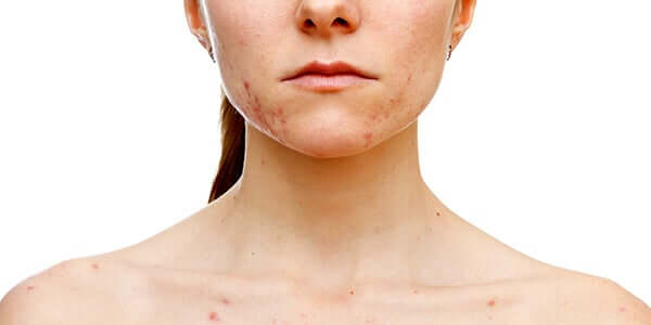 Acne provocada pela síndrome dos ovários policísticos