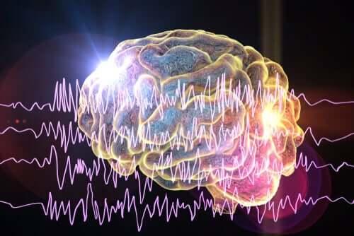 Cérebro com auras epilépticas