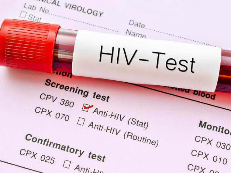 Teste de HIV