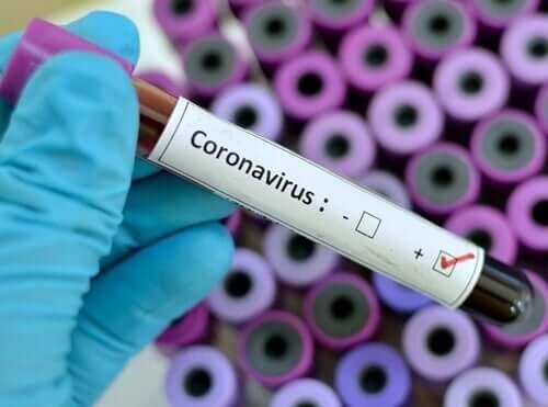 Conselhos psicológicos para lidar com o pânico causado pelo coronavírus