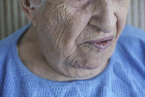 Paralisia facial: quando o rosto não responde