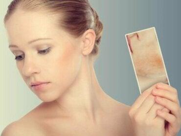 Manchas causadas pelo estresse: quando a pele reage às emoções