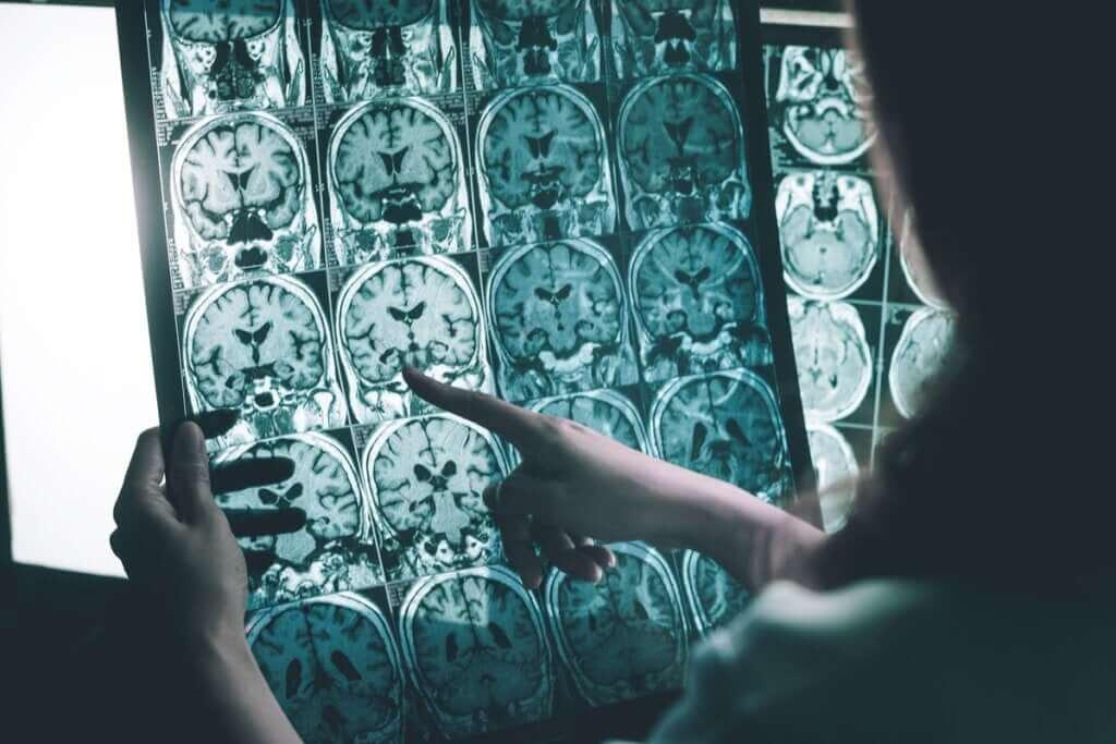 Ondas gama contra a doença de Alzheimer