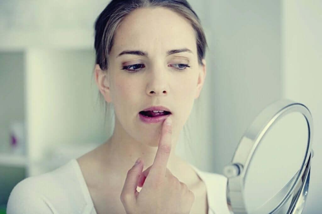 Herpes por estresse: emoções que se transformam em bolhas