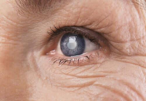 Cirurgia de catarata: como o cérebro assimila as mudanças visuais?