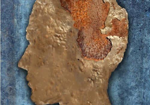 Encefalopatia espongiforme, a doença da vaca louca