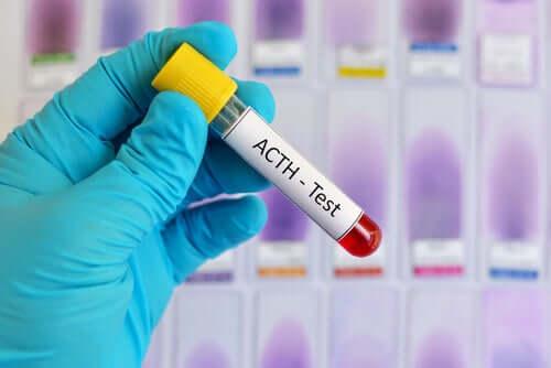 Hormônio adrenocorticotrófico: características e funções